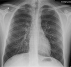 2015-12-03-imagemagick-x-ray-small.png