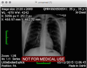 2015-12-03-osirix-x-ray-small.png